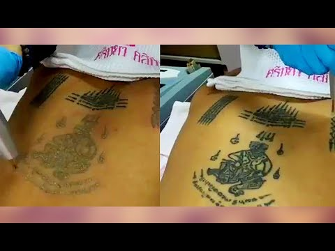 Get laser tattoo removal | how to remove tattoo | By Tattoo Clean