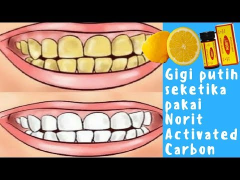 Membersihkan Gigi Kuning Resep Memutihkan Gigi