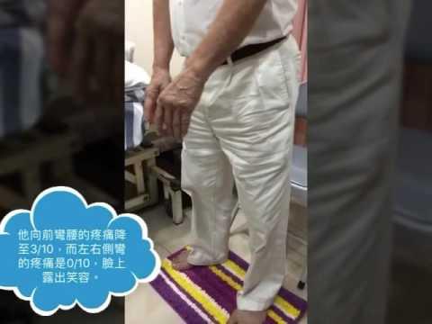 周憲民醫師_譚針董針頭皮針醫案分享_見證奇蹟的時刻! - YouTube
