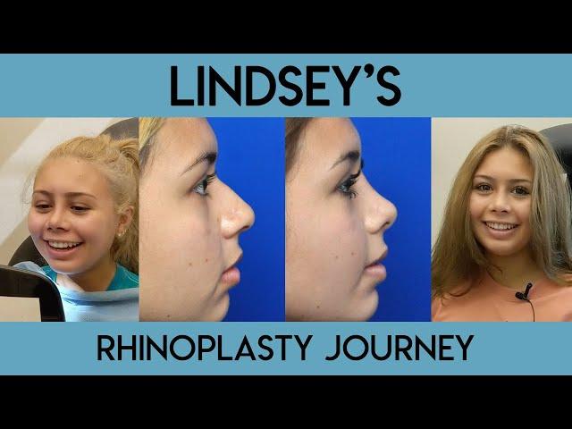 Lindsey's Rhinoplasty Journey