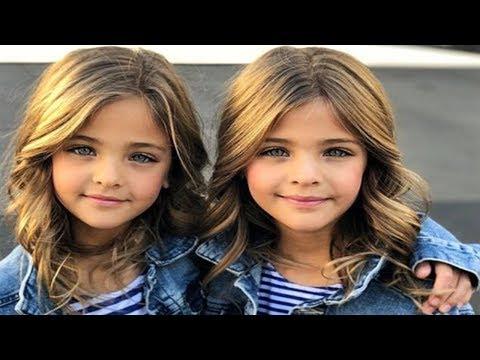 Normal İkiz Olacağını Düşünüyorlardı, Büyüdüklerinde Anneleri Bile Şok Oldu
