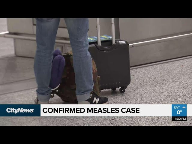 Traveller with measles passed through Pearson Airport