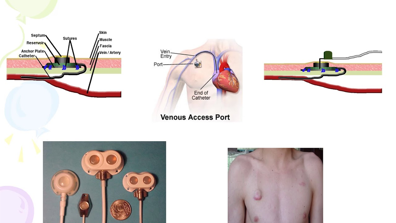 Central Venous Access Device CVAD - YouTube