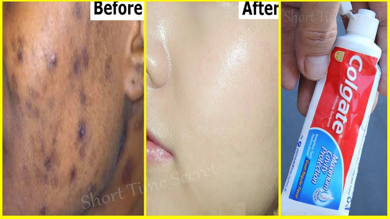 In 2 Days Remove Dark Spots With Toothpaste Apply Toothpaste On Your Darkspots And See The Magic