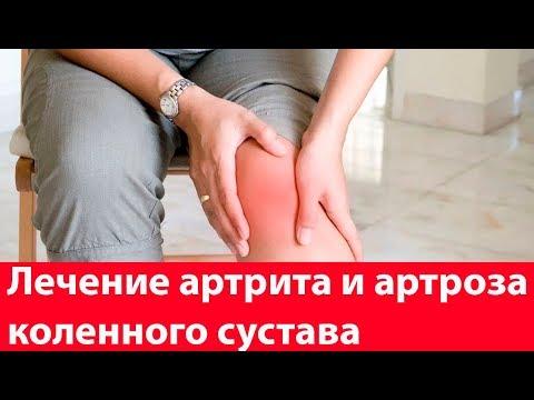 Лечение артрита и артроза коленного сустава. Как вылечить колени?