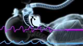 Central Sleep Apnea and the ResMed S9 Algorithm