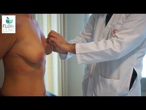Meme Dikleştirme Ve Büyütme Ameliyatı İzle   Flora Klinik 2019
