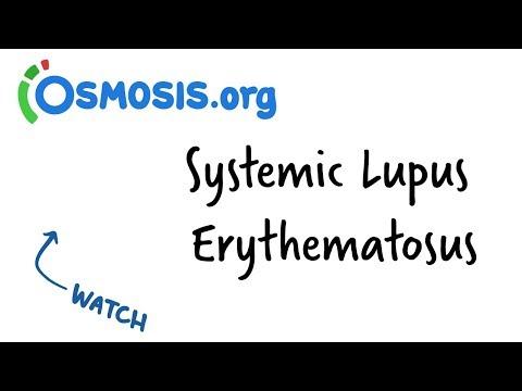 Systemic Lupus Erythematosus   Clinical Presentation