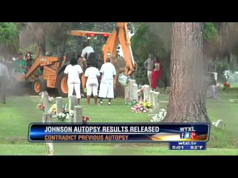 New findings to Kendrick Johnson Autopsy