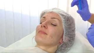 Комплексная мезотерапия лица Рикова с объяснением