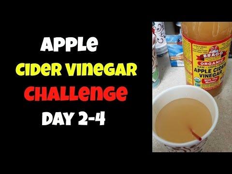 day-2--4:-bragg-apple-cider-vinegar-challenge-+-intermittent-fasting- -70-lb-weight-loss-journey