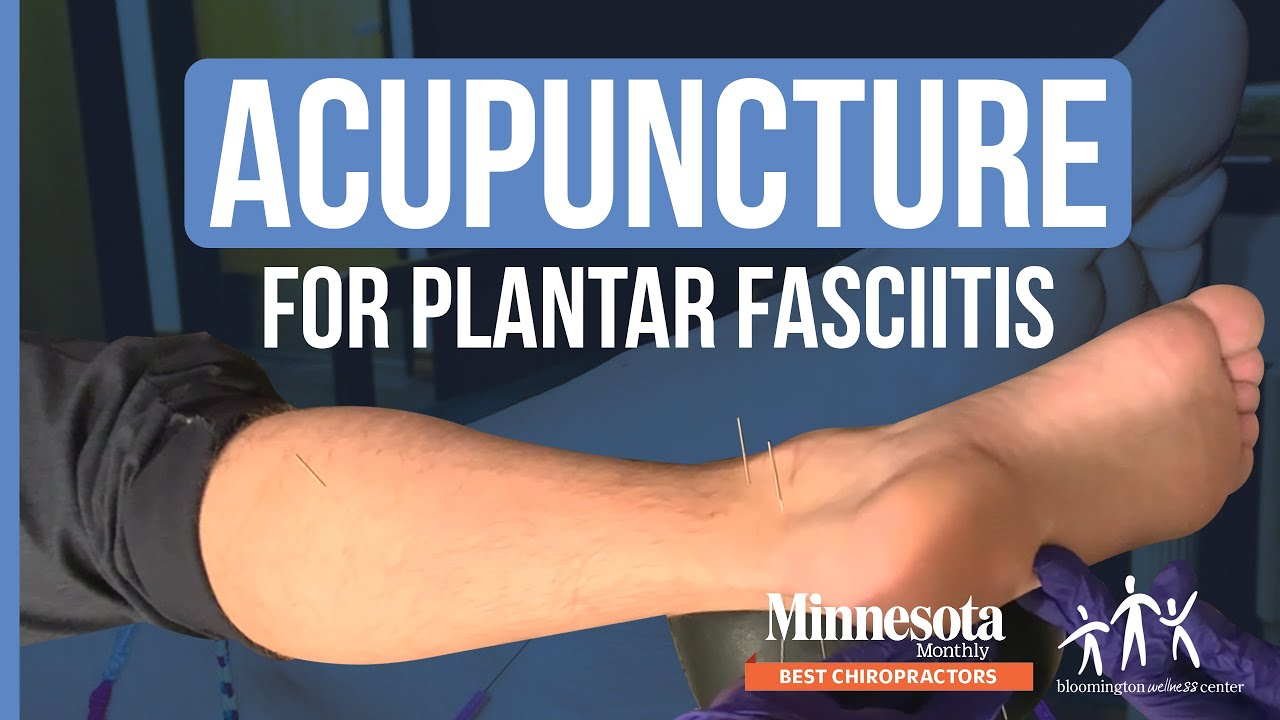 Acupuncture For Plantar Fasciitis At Bloomington Wellness ...