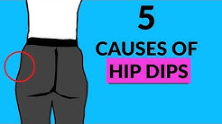 5 Causes of Hip Dips- MUST WATCH