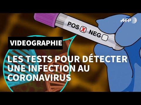 Tests pour détecter une infection au nouveau coronavirus | AFP Animé