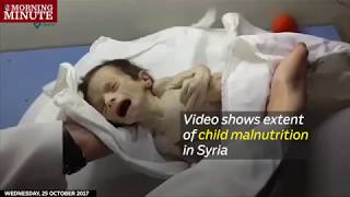 Video shows extent of child malnutrition in Syria