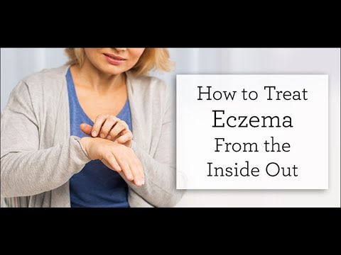 How to Treat Eczema Inside Out
