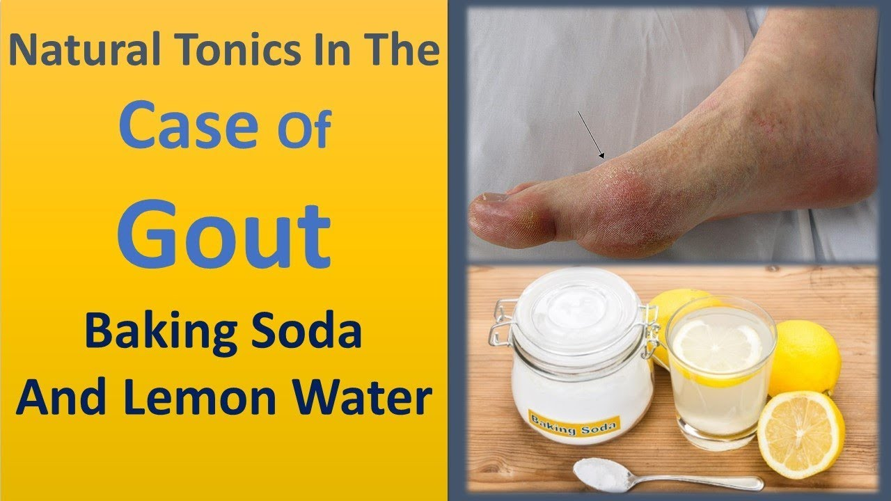 Natural tonics in the case of gout - Baking Soda and Lemon