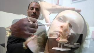 8 Point Facelift Dr Ash Labib AL Aesthetics Wolverhampton thumbnail