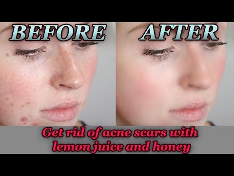 How to Get Rid of Acne Scars With Lemon Juice And Honey