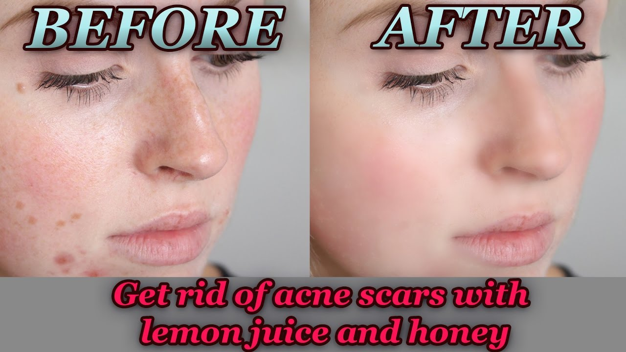 How to Get Rid of Acne Scars With Lemon Juice And Honey ...