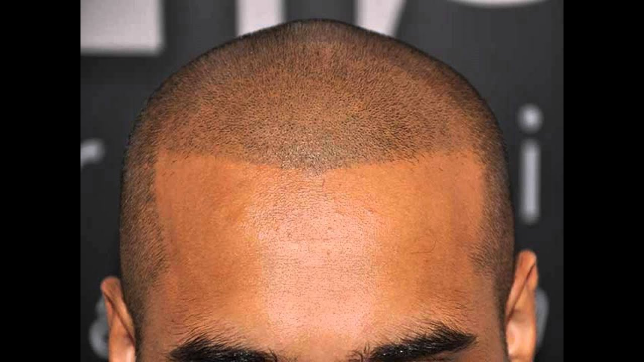Hair transplant video turkey
