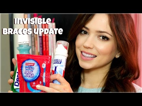Invisalign Braces | Part 7 | How To Clean + On The Good Tips