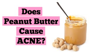 Do Peanuts or Peanut Butter Cause Acne    Clear Skin Diet Advice   Acne Triggers