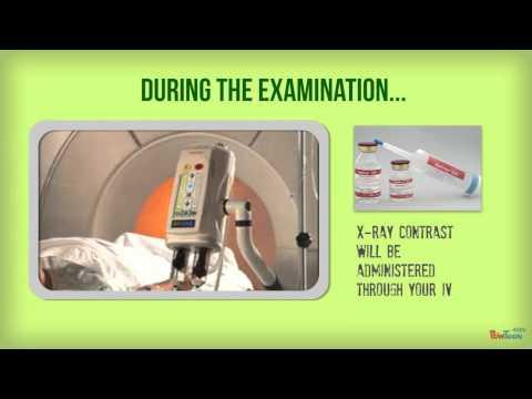 Brain Perfusion