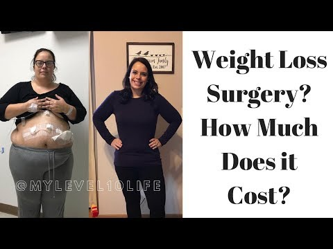 HOW MUCH DOES GASTRIC SLEEVE COST? ● VSG