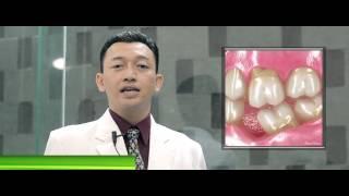 Jenis jenis Gigi palsu