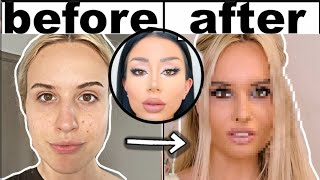 MY PLASTIC SURGERY AT HOME WITH AMBER SCHOLLS TIPS!! (**MY BOYFRIENDS REACTION TO PLASTIC SURGERY!)