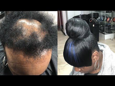 high-bun-w/-bang-on-severe-alopecia-tutorial