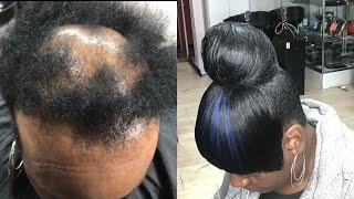 High Bun W/ Bang on Severe Alopecia Tutorial