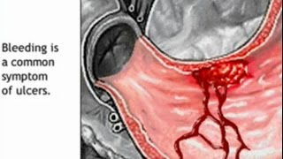 Stomach Ulcer Animation - Peptic Ulcer Disease Causes, Symptoms, Treatment - Gastric Anatomy