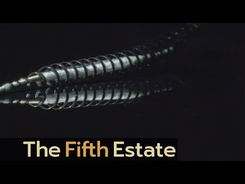 Unreported: The Essure Story | Implant Files