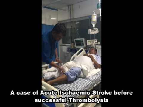 A case of acute ischaemic stroke before successful Thrombolysis