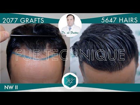 Injerto Capilar Técnica FUE – 2.077 Folículos (5.647 Pelos) – Dr. Rafael de Freitas