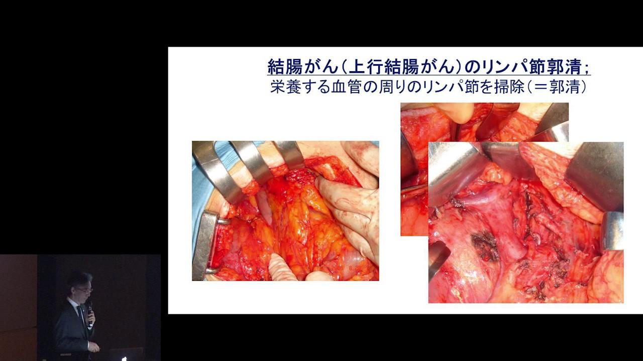 大腸がんの手術と手術後の生活 安野 正道 - YouTube