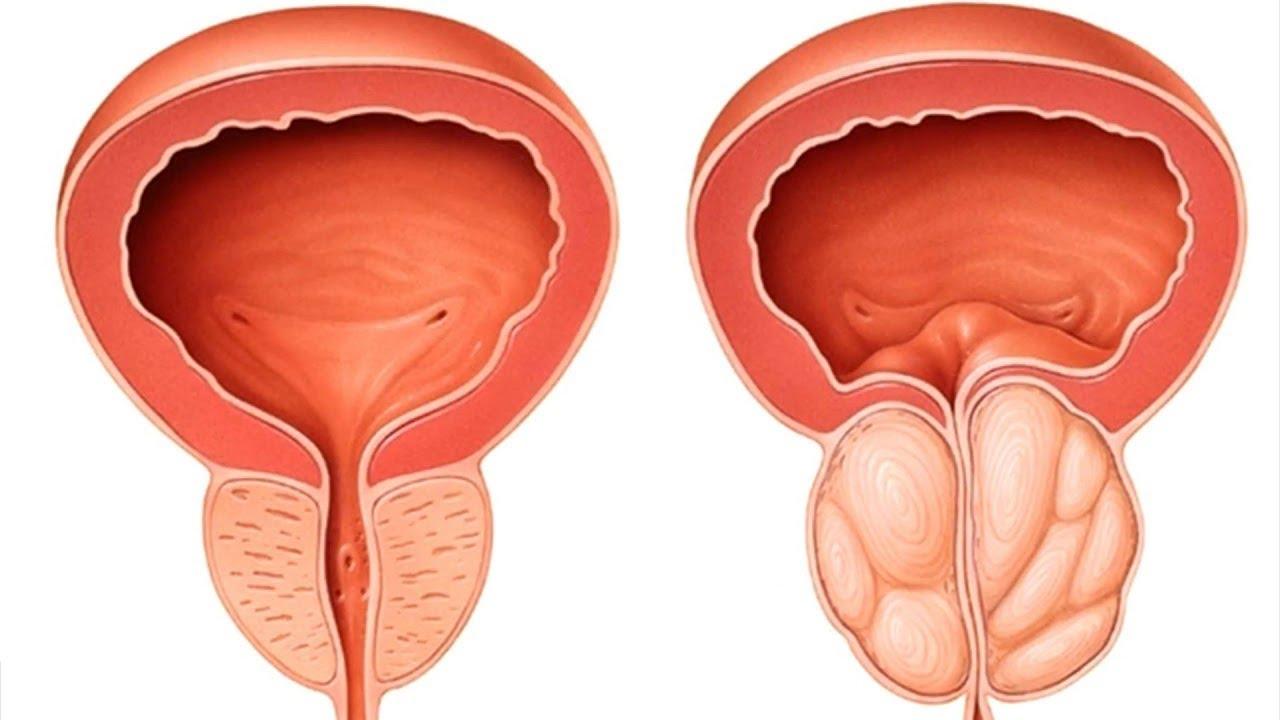 5 skutecznych sposobów na przerost prostaty