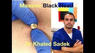 Massive Blackhead Extraction Dr Khaled Sadek LipomaCyst.com