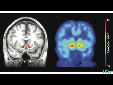 Drinking alcohol leads to the release of natural brain opioids in humans