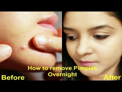 How To Remove Pimples Overnight|Home Remedies|Acne Treatment|Rid of Blemishes Nauturally