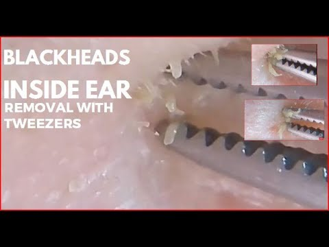 Blackheads Inside ear removal with tweezers