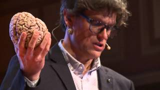 Brain concussion - Shake it and you break it   Steven Laureys   TEDxLiège
