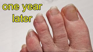 Download Repainting my Toe Nails After 1 Year of Growing Them Out Mp3 and Videos