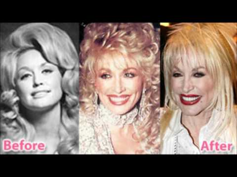 Dolly Parton Before And After Plastic Surgery Youtube