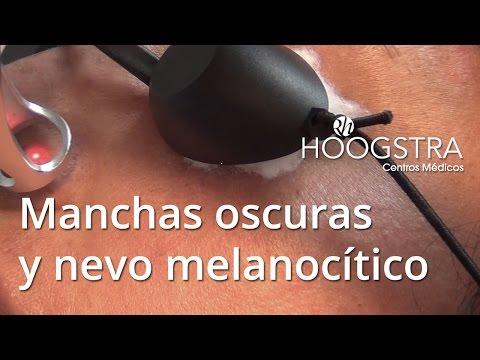 Manchas oscuras de la piel y nevo melanocítico - Láser Helios (16001)