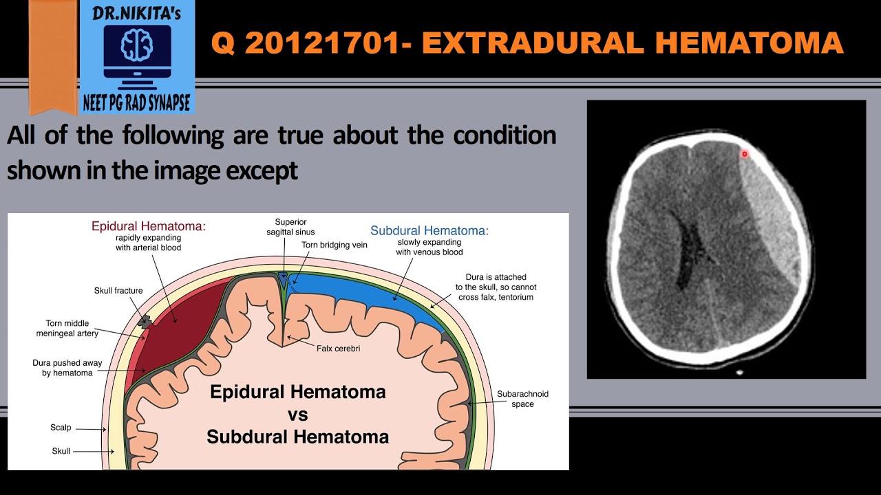 Vs hematoma hematoma subdural epidural Epidural vs