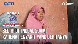 BAPAU ASLI INDONESIA - Sedih! ditinggal Suami Karena Penyakit Yang Deritanya [01 Oktober 2020]