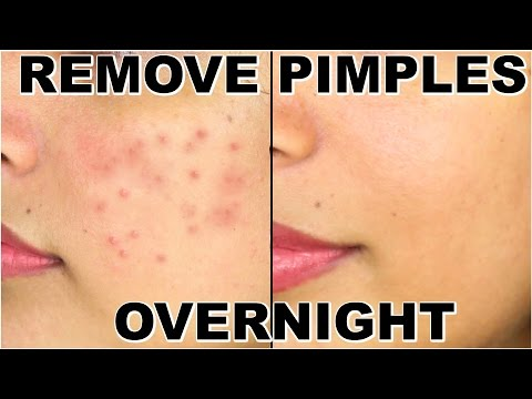 How To Remove Pimples Overnight | Acne Treatment | ShrutiArjunAnand